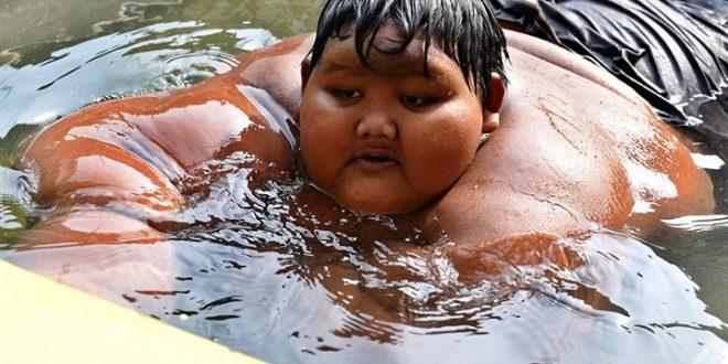 بالصور، طفل يبلغ وزنه 190 كغم !