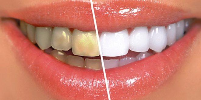 وصفة مذهلة لتبييض الأسنان في اقل من 10 دقائق!