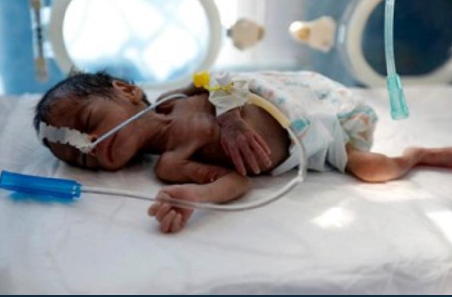 تقرير دولي: 24 مليون يمني يعيشون على حافة المجاعة